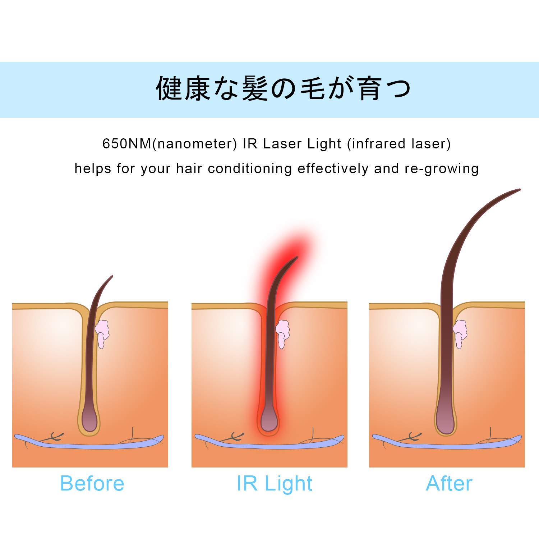 650ナノメートルの赤外線が薄毛に効果⁉マイナスイオン発生冷感ブラシとIRで毛髪をケアするMEXITOPヘアブラシ